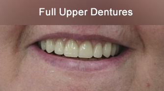 After full upper and lower dentures