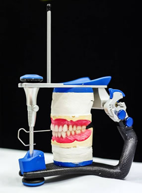 New Dentures set in Wax at try-in stage